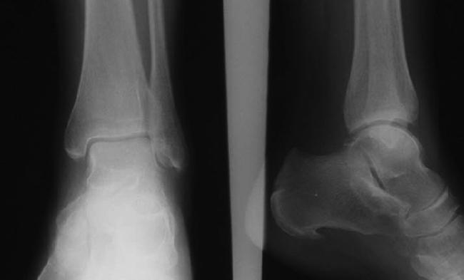 Регионарный остеопороз на снимке