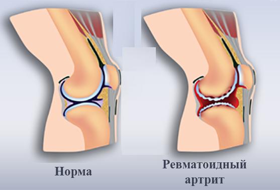 Норма и ревматоидный артрит