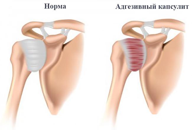 Изображение - Адгезивный капсулит плечевого сустава лечение noorm12