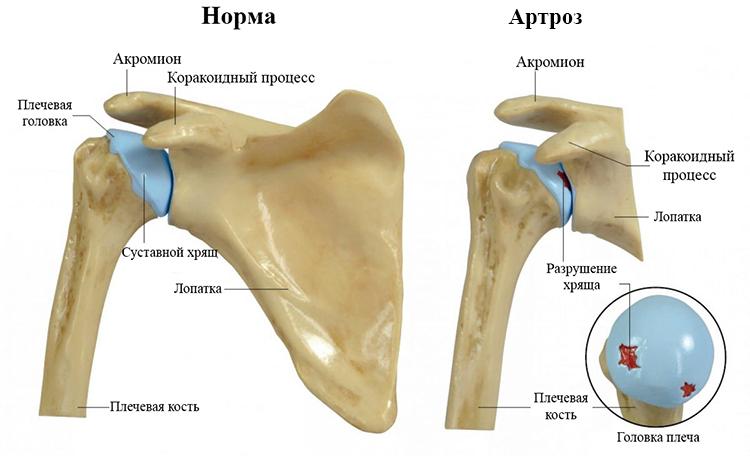 Артроз плечевого сустава 1 и 2 степени симптомы и лечение