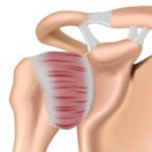 Адгезивный капсулит плеча: стадии, симптомы и лечение