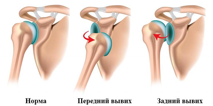 Изображение - Восстановительная гимнастика после вывиха плечевого сустава nor148
