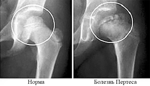 Изображение - Болезни и лечение тазобедренного сустава norm_petres1-1