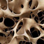 Остеопения: что это, симптомы и как лечить