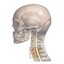 Остеофиты шейного отдела позвоночника: причины, симптомы и лечение