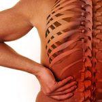 Остеохондроз 2 степени: симптомы, особенности и лечение