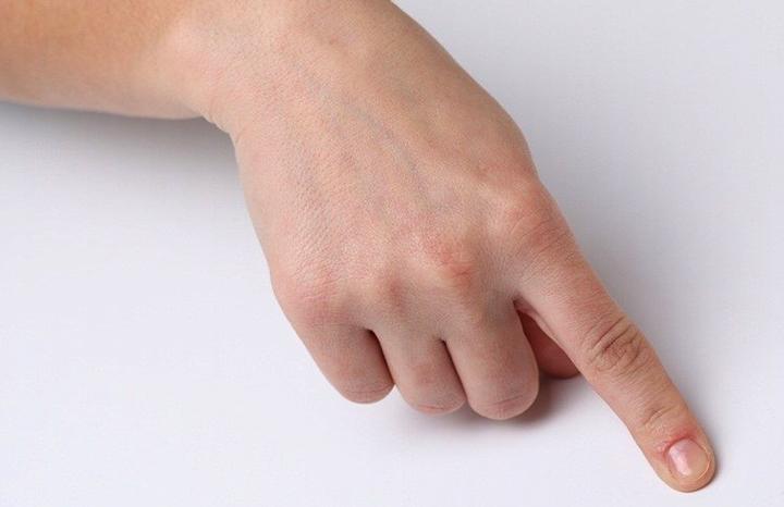 Выбитый указательный палец