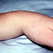 Перелом лучезапястного сустава: виды, симптомы и восстановление
