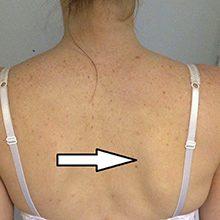 Перелом лопатки: симптомы, лечение и первая помощь