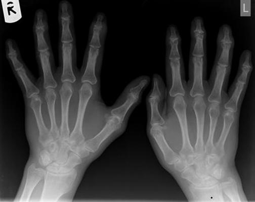 Псориатический артрит на снимке