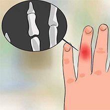 Если выбил палец на руке: что делать и как лечить