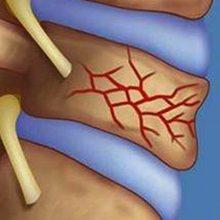 Перелом позвоночника: причины, симптомы и лечение
