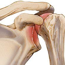 Привычный вывих плеча: что это, причины, симптомы и лечение