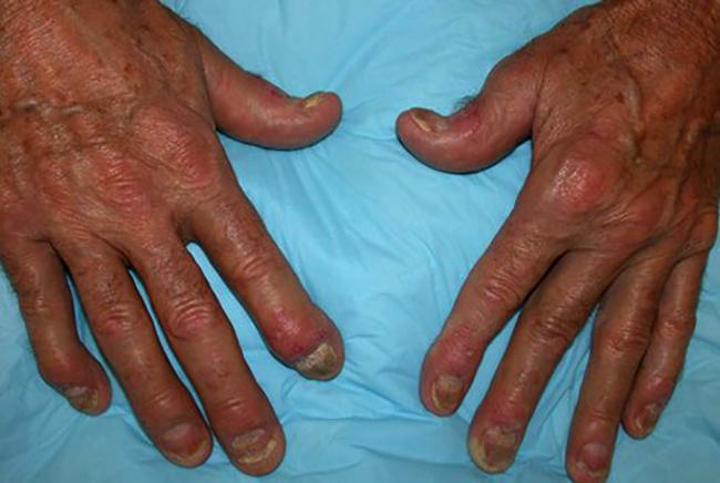 Как выглядит псориатический артрит