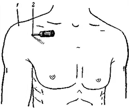 Разрез на плече