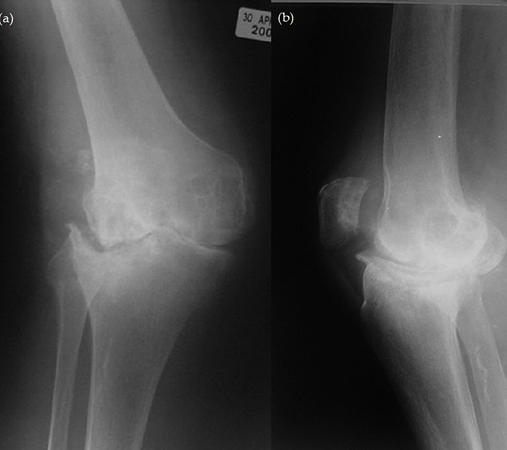 Ревматоидный артрит коленного сустава на снимке