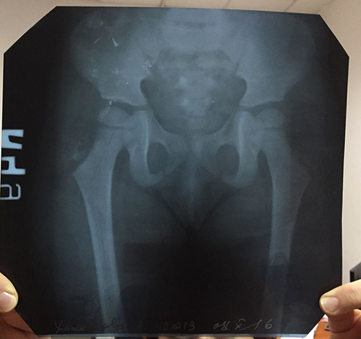 Рентген таза малыша