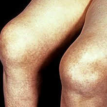 Ревматоидный артрит коленного сустава: симптомы, диагностика и лечение