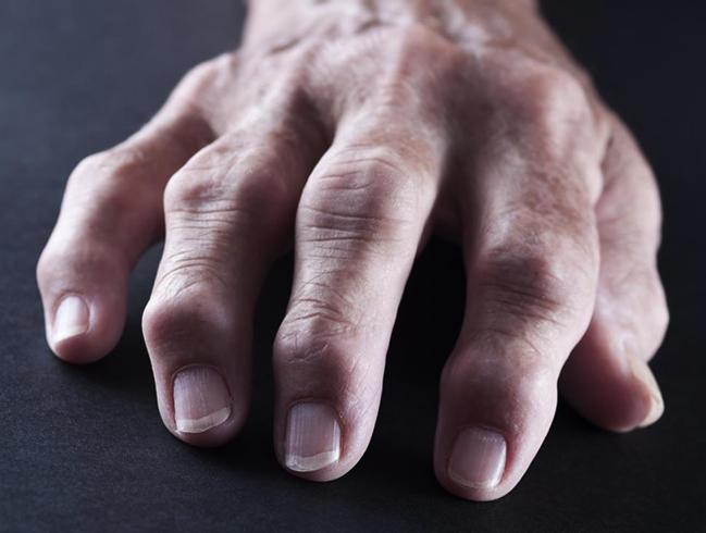 Симптомы на руках
