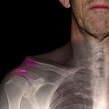 Вывих ключицы: симптомы, диагностика и методы лечения