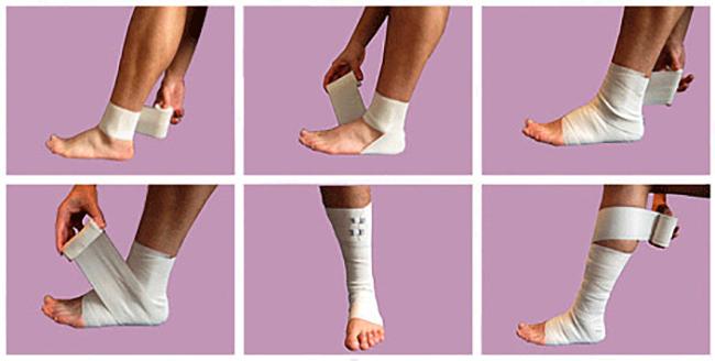 Изображение - Бинт на голеностопный сустав sheem12