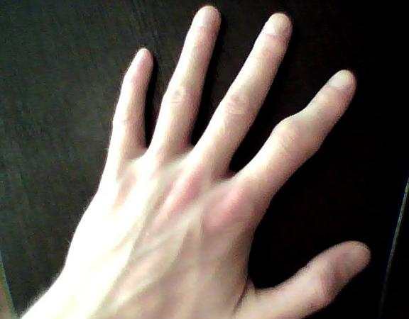 Шишка на указательном пальце