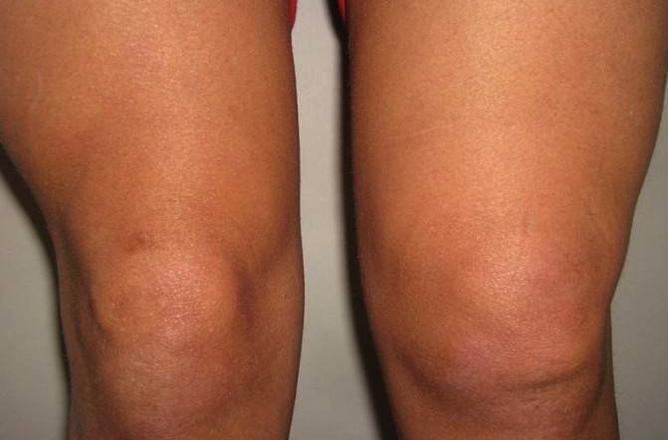 Симптом синовита в колене