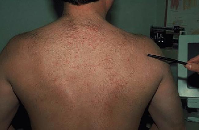 Симптомы кисты плечевого сустава