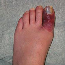 Перелом большого пальца на ноге: признаки и лечение