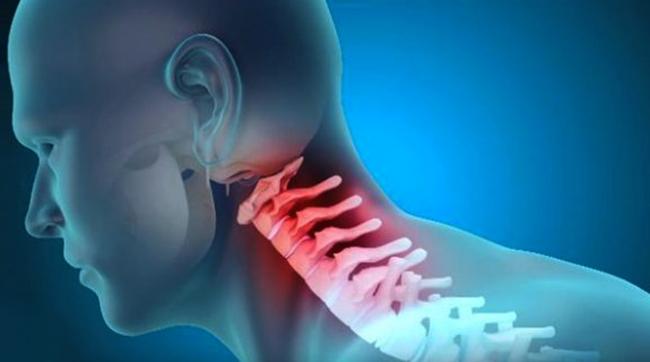 Симптом шейно-черепного синдрома
