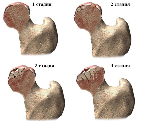 Изображение - Болезни и лечение тазобедренного сустава stad10