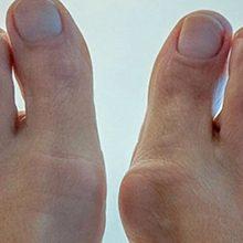 Шишки на пальцах ног — причины появления и как лечить