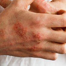 Острая ревматическая лихорадка: симптомы, диагностика и лечение