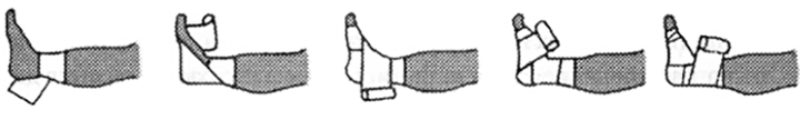 Изображение - Бинт на голеностопный сустав tehn12