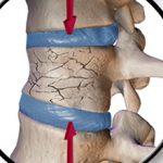 Трещина в позвоночнике: симптомы, лечение и последствия