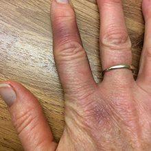 Сильный ушиб пальца: симптомы и что делать