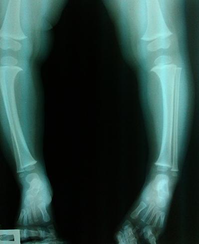 Варунсая деформация на рентгене