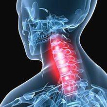 Вертеброгенная цервикобрахиалгия: причины, симптоматика и лечение