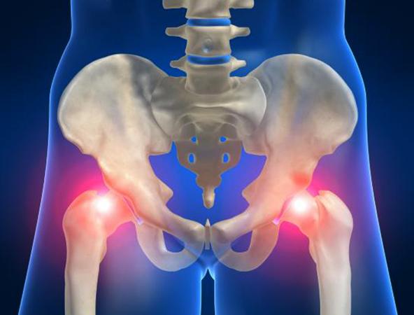 Реактивный артрит тазобедренного сустава