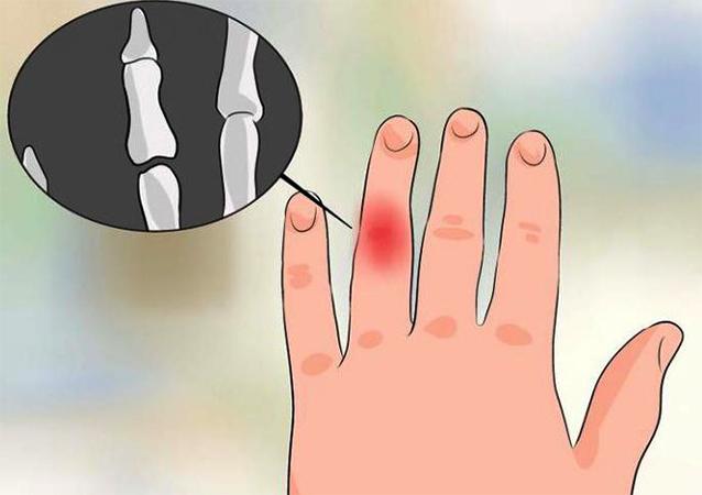 Выбитый палец на руке