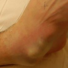 Вывих стопы: симптомы и как лечить