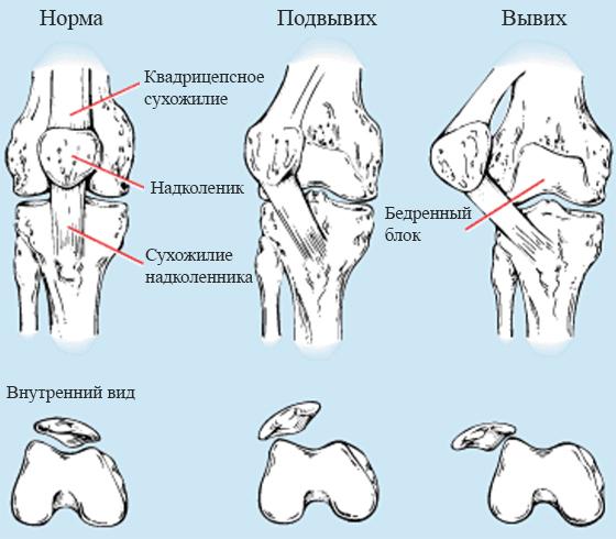 На примере коленного сустава