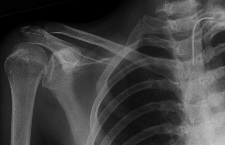 Вывих на рентгене