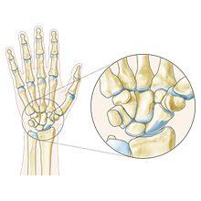 Лучезапястный сустав — анатомия, строение, функции (с фото)