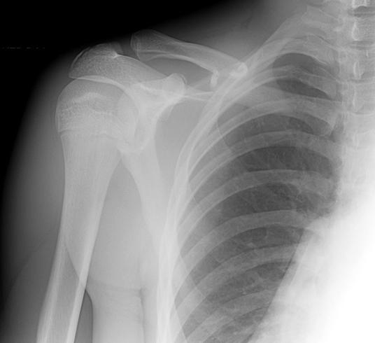 Рентген перелома сустава