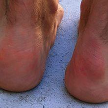 Болезнь Хаглунда — причины, симптомы, диагностика и лечение