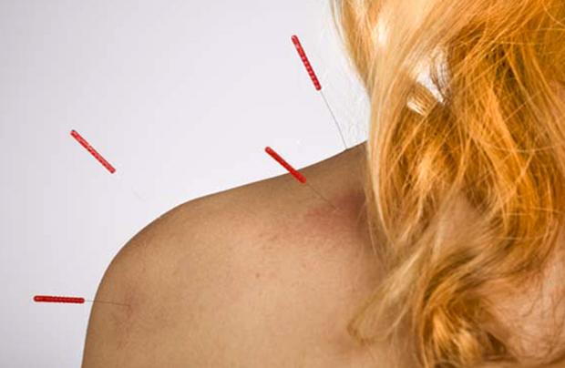 Иглоукалывание плеча