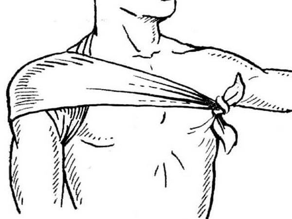 Косыночная повязка на плечео