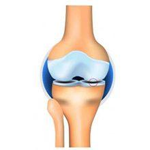 Остеоартроз коленного сустава 1 степени: симптомы, диагностика и лечение