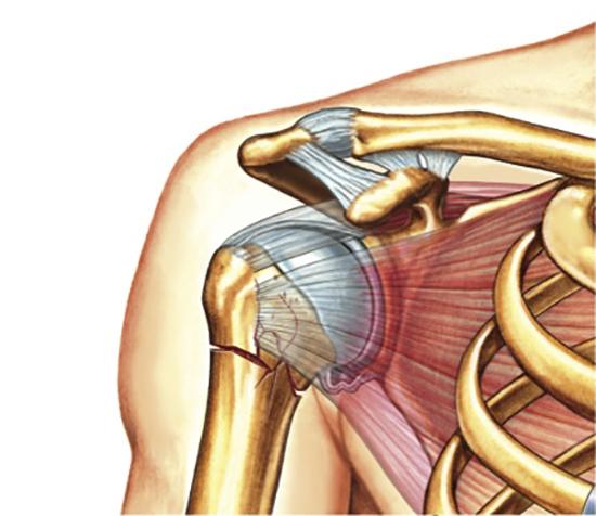Перелом кости плеча